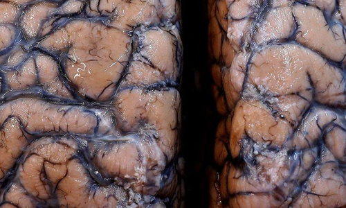 Temporary dysfunction, strokes, nerve damage: Scientists warn of potential wave of Covid-linked brain damage