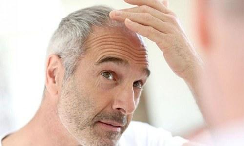 بالوں سے محرومی کورونا کی وبا کا ایک اور اثر قرار