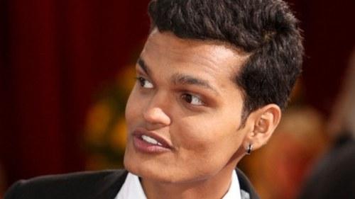 'سلم ڈاگ ملینئر' کے اداکار پر سابقہ گرل فرینڈ کو جنسی ہراساں کرنے کا الزام