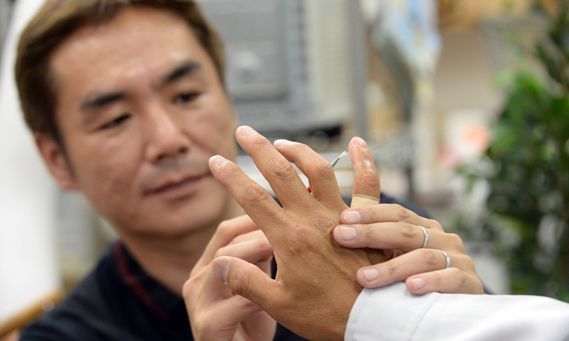 In this picture taken on on May 27, 2013, prosthetics specialist Shintaro Hayashi (L) checks the silicone-made finger of a 53-year-old former yakuza gangster, at his office in Tokyo. — AFP Photo
