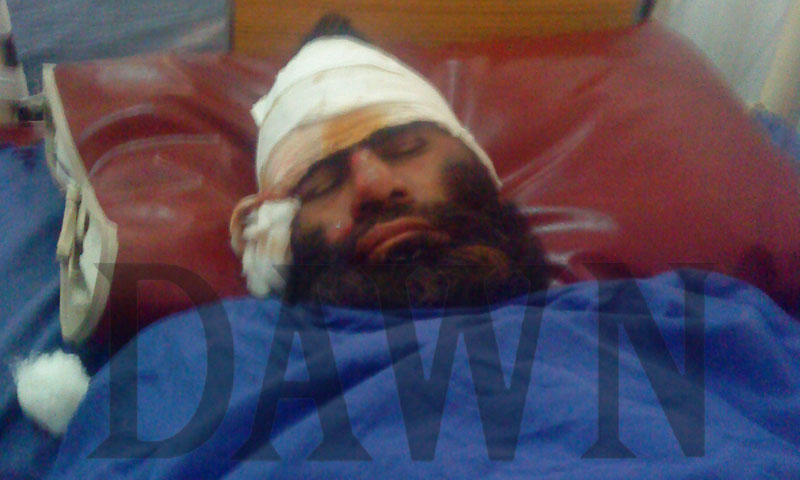 Exclusive photo shows one of the suspects of the Peshawar mosque blast at a hospital with multiple bullet wounds and head injuries.—Photo courtesy Zahir Shah Sherazi
