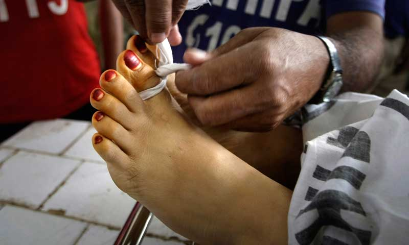 In this Dec 18, 2012, file photo, a hospital worker ties together the toes of Madiha Bibi, a polio worker killed by unknown gunmen in Karachi. — Photo by AP