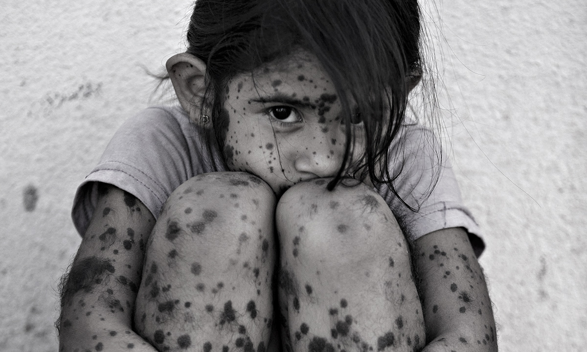 Aixa Cano, 5, who has hairy moles all over her body that doctors can't explain, sits on a stoop outside her home in Avia Terai, in Chaco province, Argentina. Although it's nearly impossible to prove, doctors say Aixa's birth defect may be linked to agrochemicals. In Chaco, children are four times more likely to be born with devastating birth defects since biotechnology dramatically expanded farming in Argentina. Chemicals routinely contaminate homes, classrooms and drinking water.- AP Photo