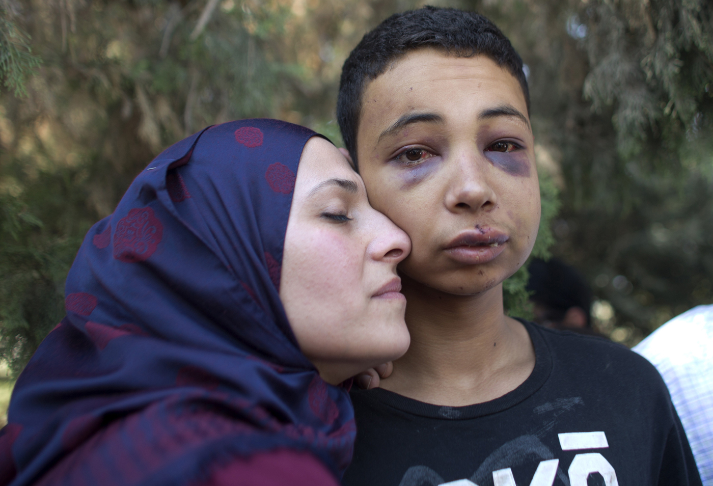 Days later, Palestinian teen Tariq Abu Khdeir was arrested during clashes with Israeli police sparked by the murder of his cousin Mohammad Abu Khder. Tariq was badly beaten before he was arrested by Israeli security forces at a demonstration. This picture was taken when he reunited with his mother — Photo by AFP