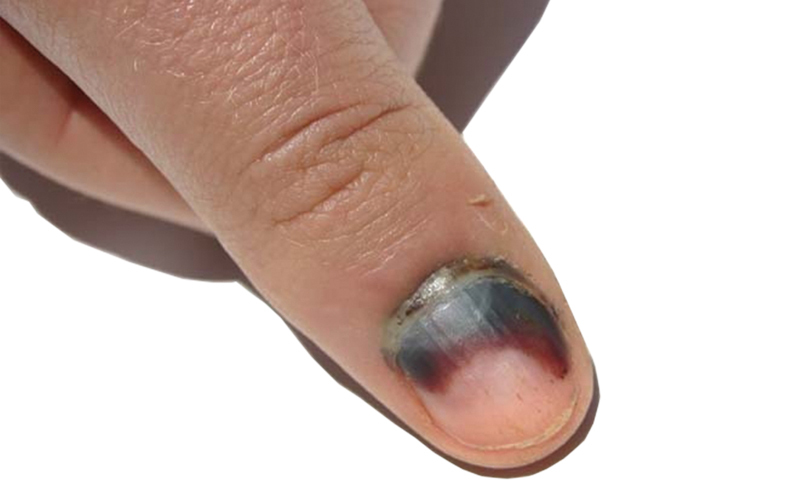 Что делать при ногтевой гематоме