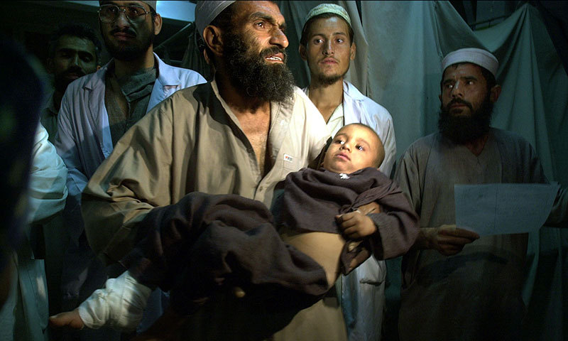 In this Sunday, Oct 14, 2001 file photo, an Afghan man holds his 4-year-old son as he takes him to the x-ray room at the hospital in the city of Jalalabad. – AP Photo