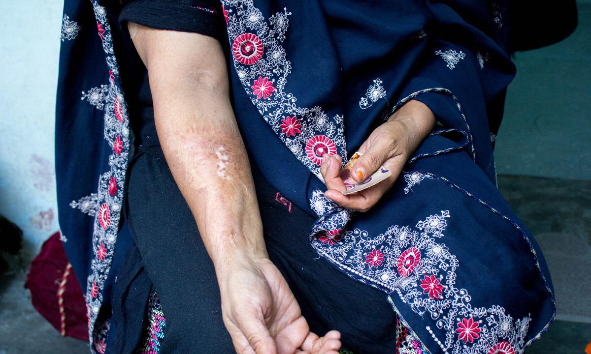 Najma shows her burns. -Photo by Muhammad Umar