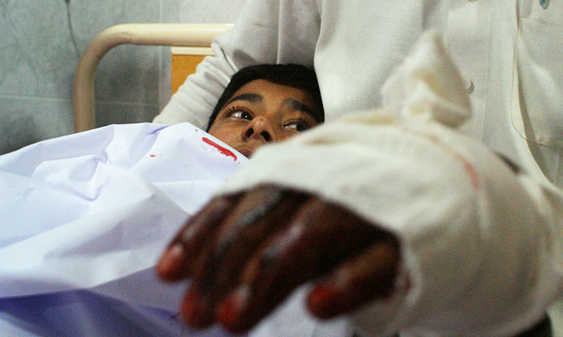 An injured student lies in bed at a hospital following an attack by Taliban gunmen on a school in Peshawar on December 16, 2014. -AFP