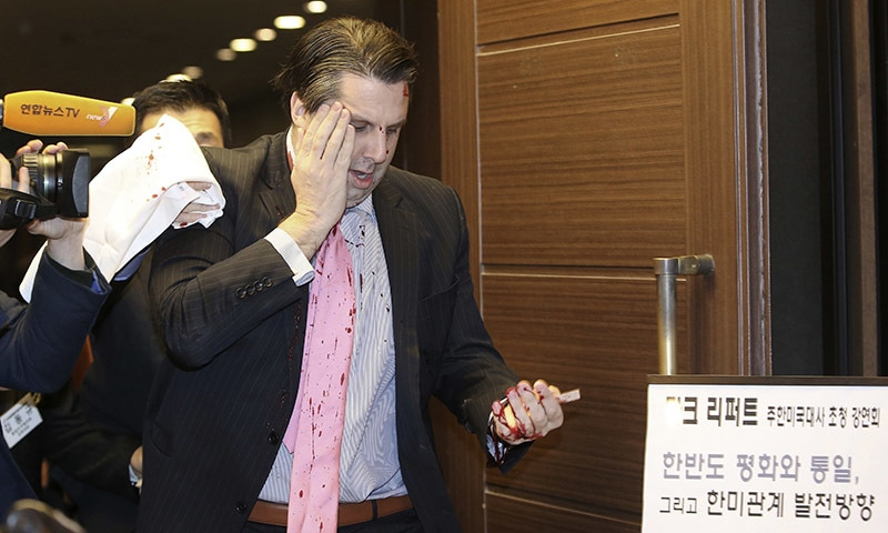 US Ambassador Mark Lippert placing his right hand on his face leaves a lecture hall for a hospital in Seoul, South Korea, after being attacked by a man. Lippert was in stable condition after the man screaming demands for a unified North and South Korea slashed him on the face and wrist with a knife, South Korean police and US officials said. - AP