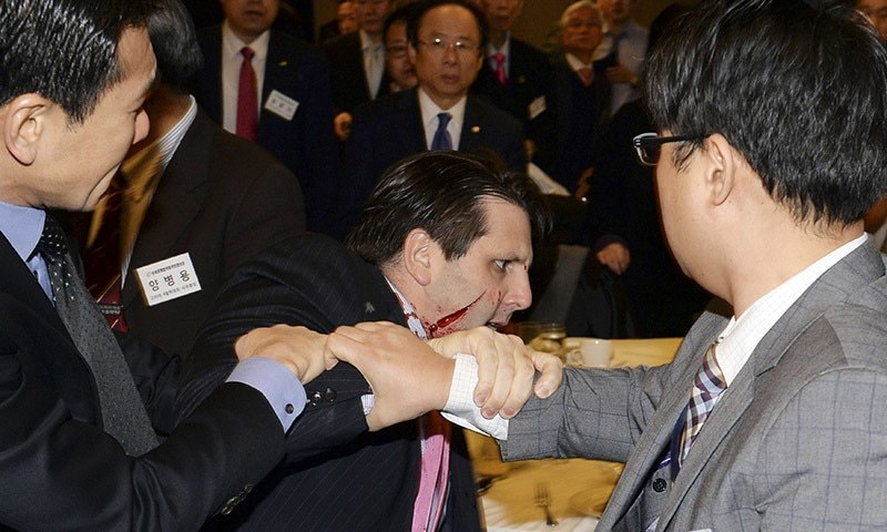 US Ambassador to South Korea Mark Lippert leaves after he was slashed in the face by Kim Ki-jong, a member of a pro-Korean unification group, at a public forum in central Seoul. -Reuters