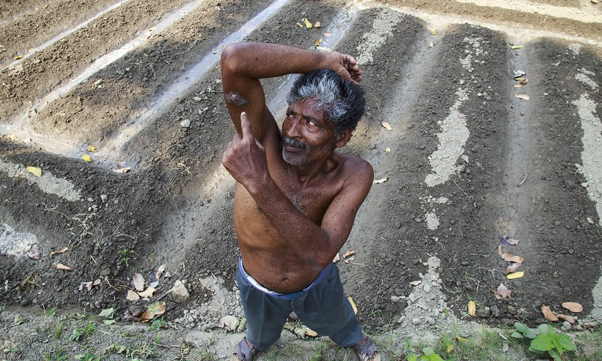 A farmer points at the marks developed during one of the stages of Arsenicosis. — Baba Tamim