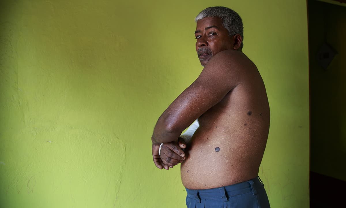 A villager shows black marks on his body due to intake of arsenic water for a long time.— Baba Tamim