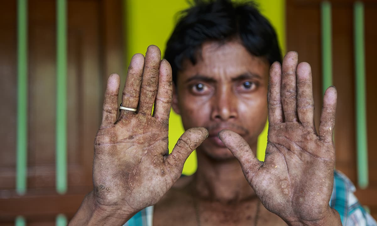 An arsenic patient shows his affected hands.— Baba Tamim