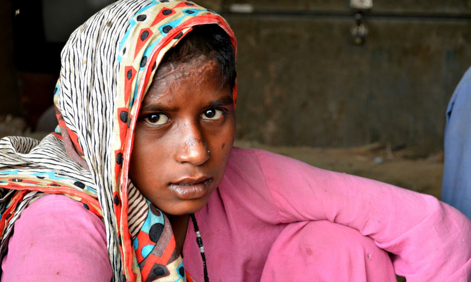 Teenager Radha was injured while crossing the road to fetch water. Women have to walk miles through the outskirts of Karachi to fetch drinking water for their families.