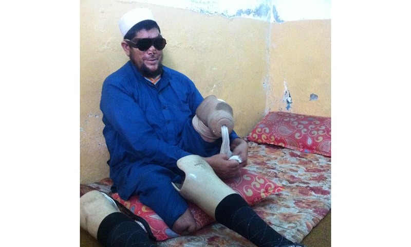 Bahadar attaches an artificial leg to his knee, recalling the incident that changed his life. —Photo by author