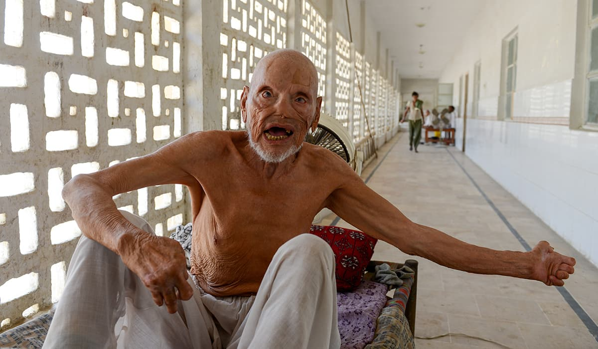 A leprosy patient in a corridor of the male ward of the hospital | Tahir Jamal, White Star
