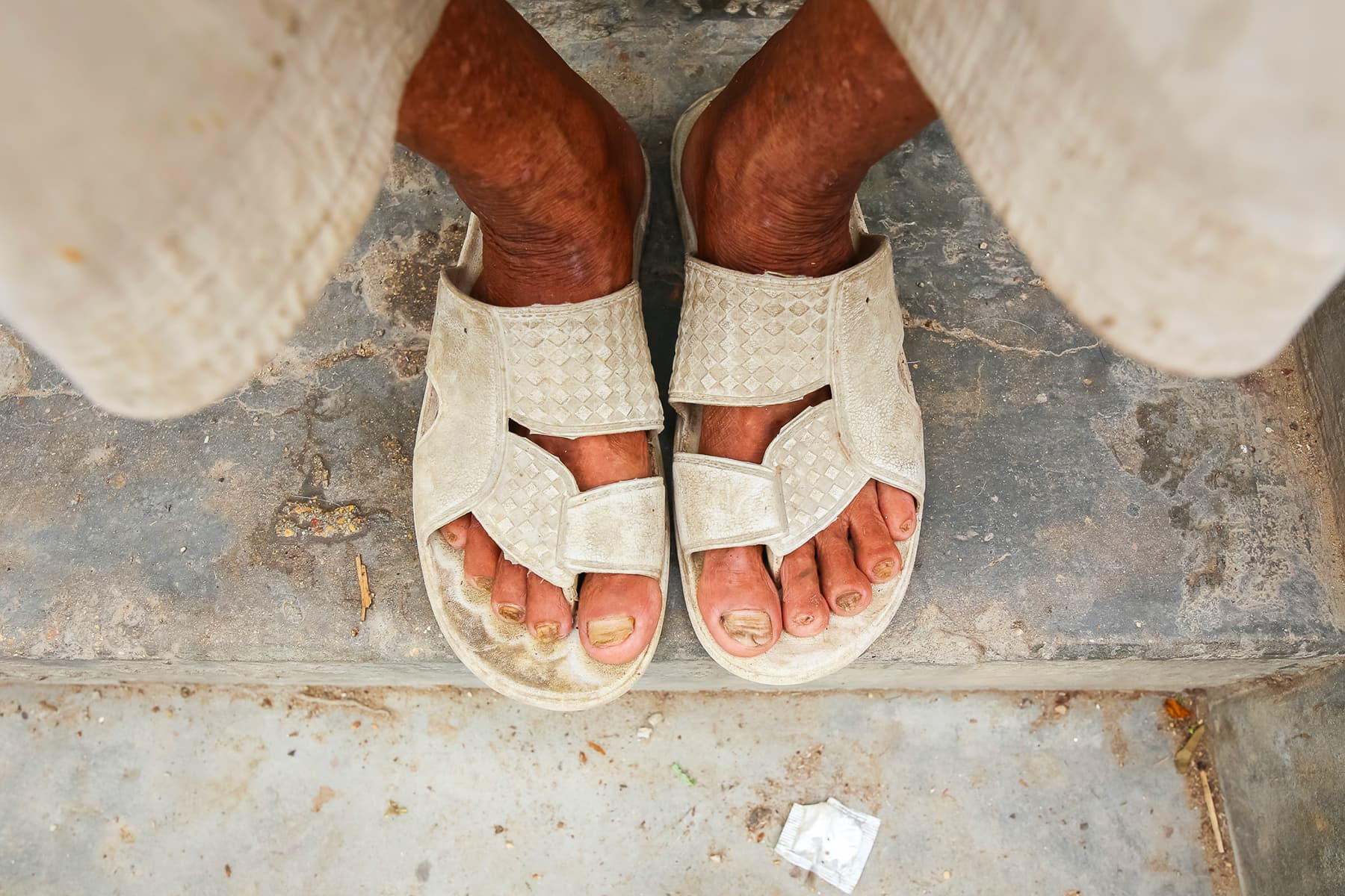 Dhobis develop an itch in their feet, a symptom very common among them.