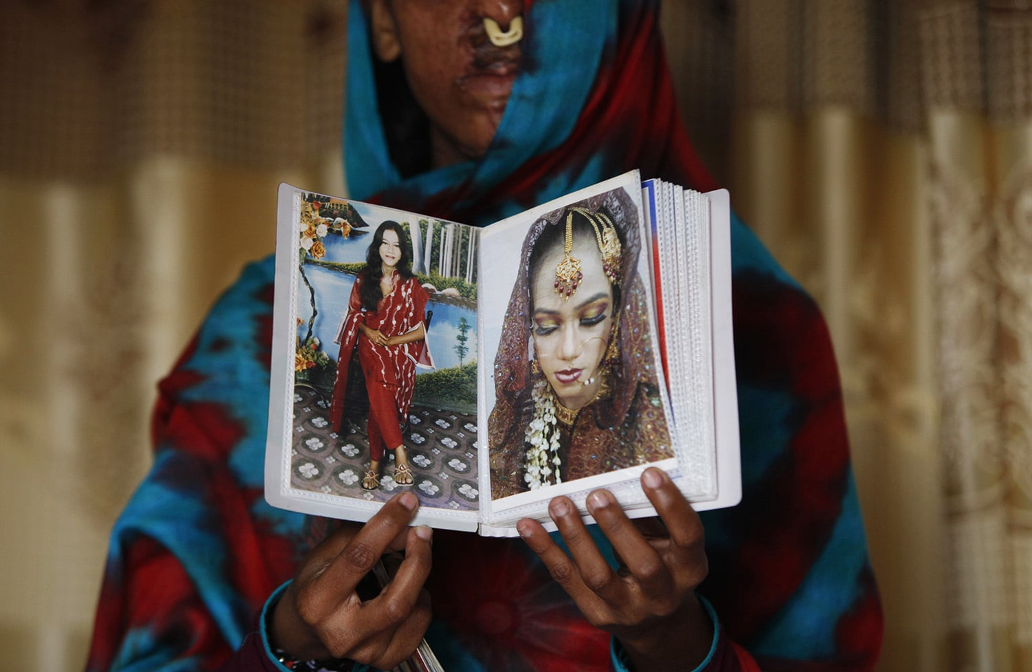 Sidra Kanwal shows pictures of herself before she was disfigured in an acid attack in Karachi, Pakistan.—AP