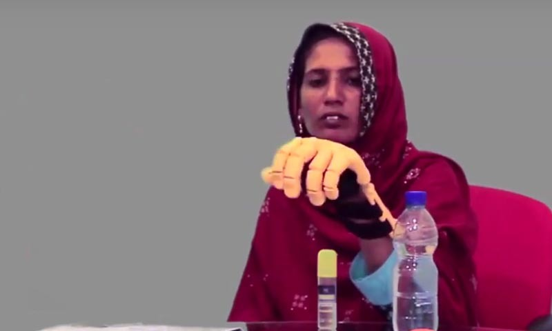 How 3D prosthetics change lives in Pakistan