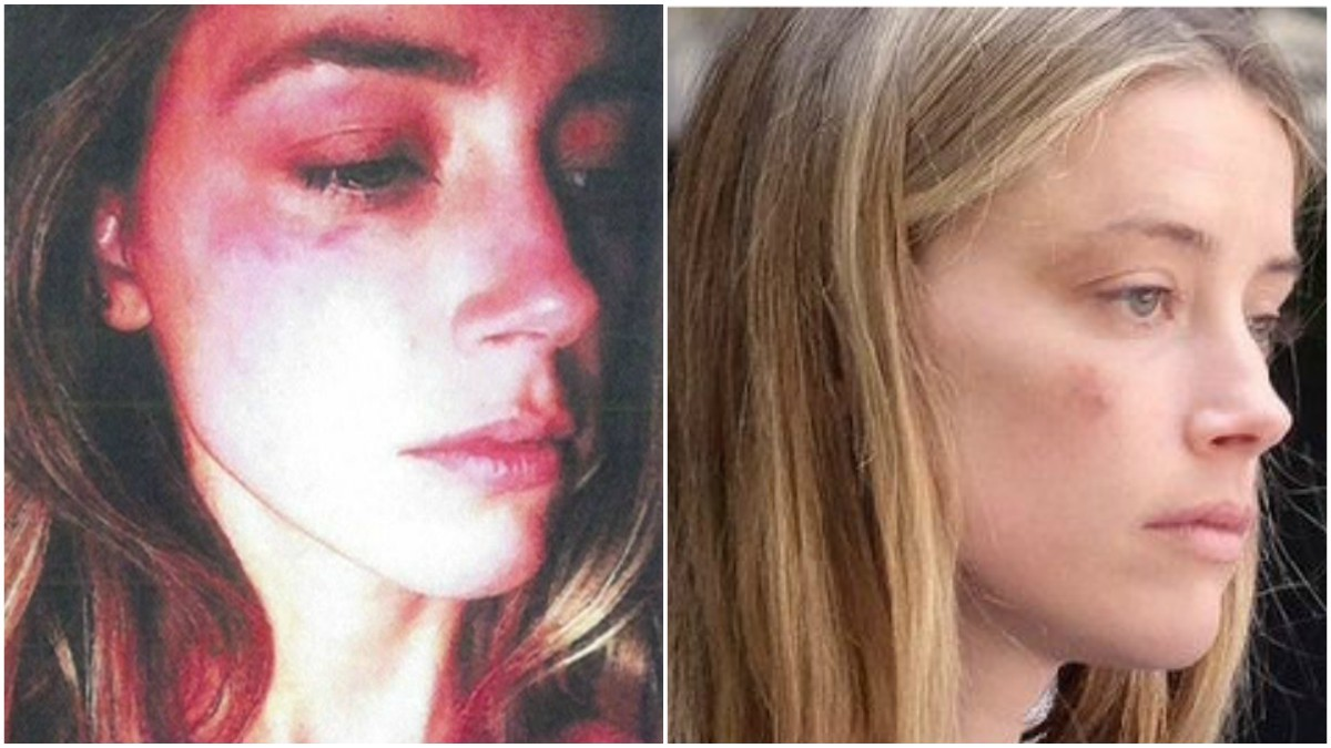 Left: Heard produced this picture as evidence of Depp's abuse | Right: Heard's face still bore marks of injury when she presented the evidence in court on Friday - Photos courtesy BBC