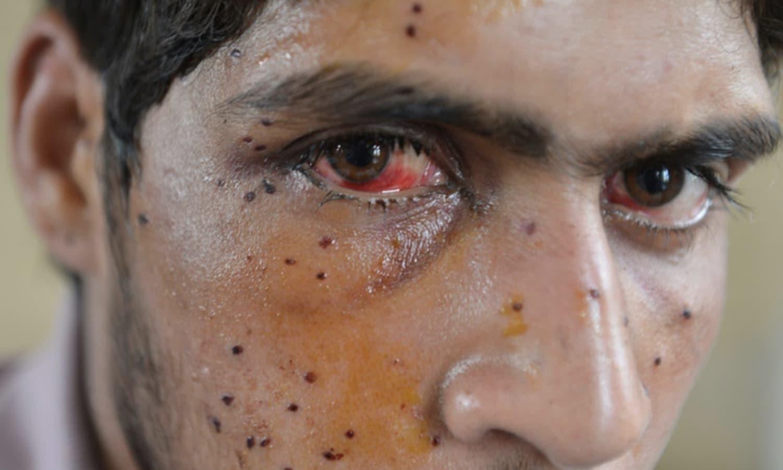 ہندوستانی فوج کے چھروں سے زخمی ہونے والا کشمیری نوجوان ایک ہسپتال میں علاج کا منتظر ہے۔ — فوٹو اے ایف پی۔