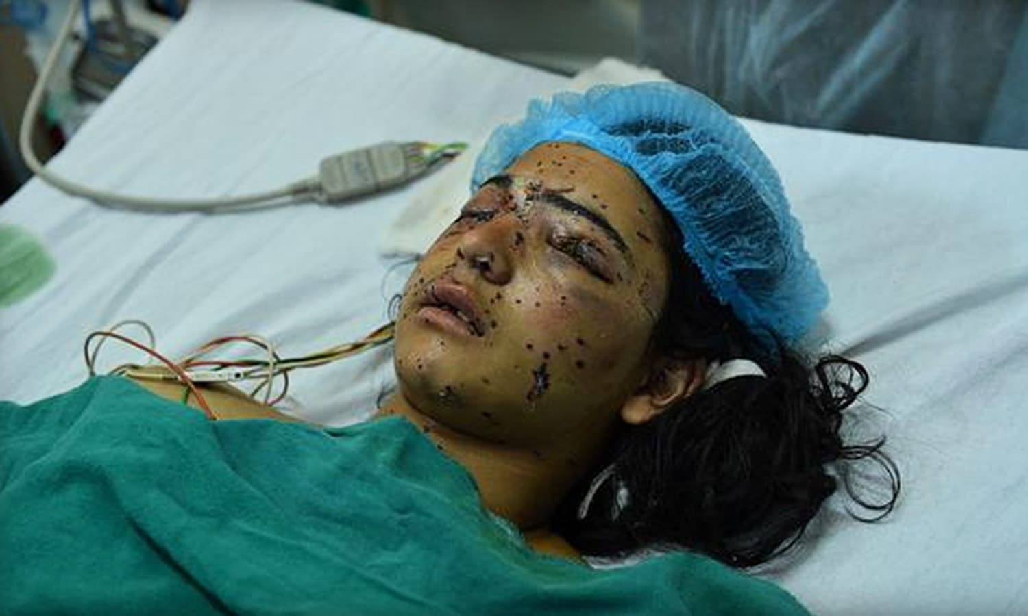 Insha Malik, 14, lays in a hospital bed in Srinagar, after being shot with pellets. —AFP