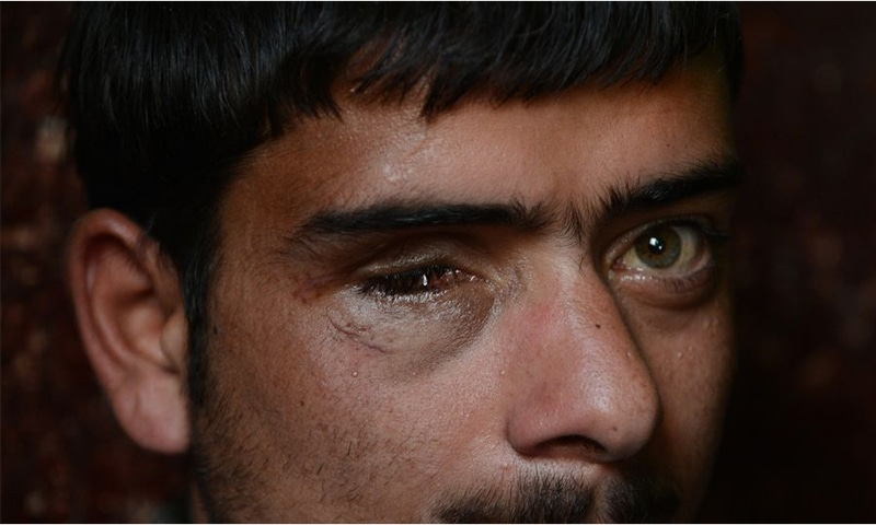 Eye surgeons say that in cases of such trauma, it is rare for patients to regain normal vision. — AFP/File