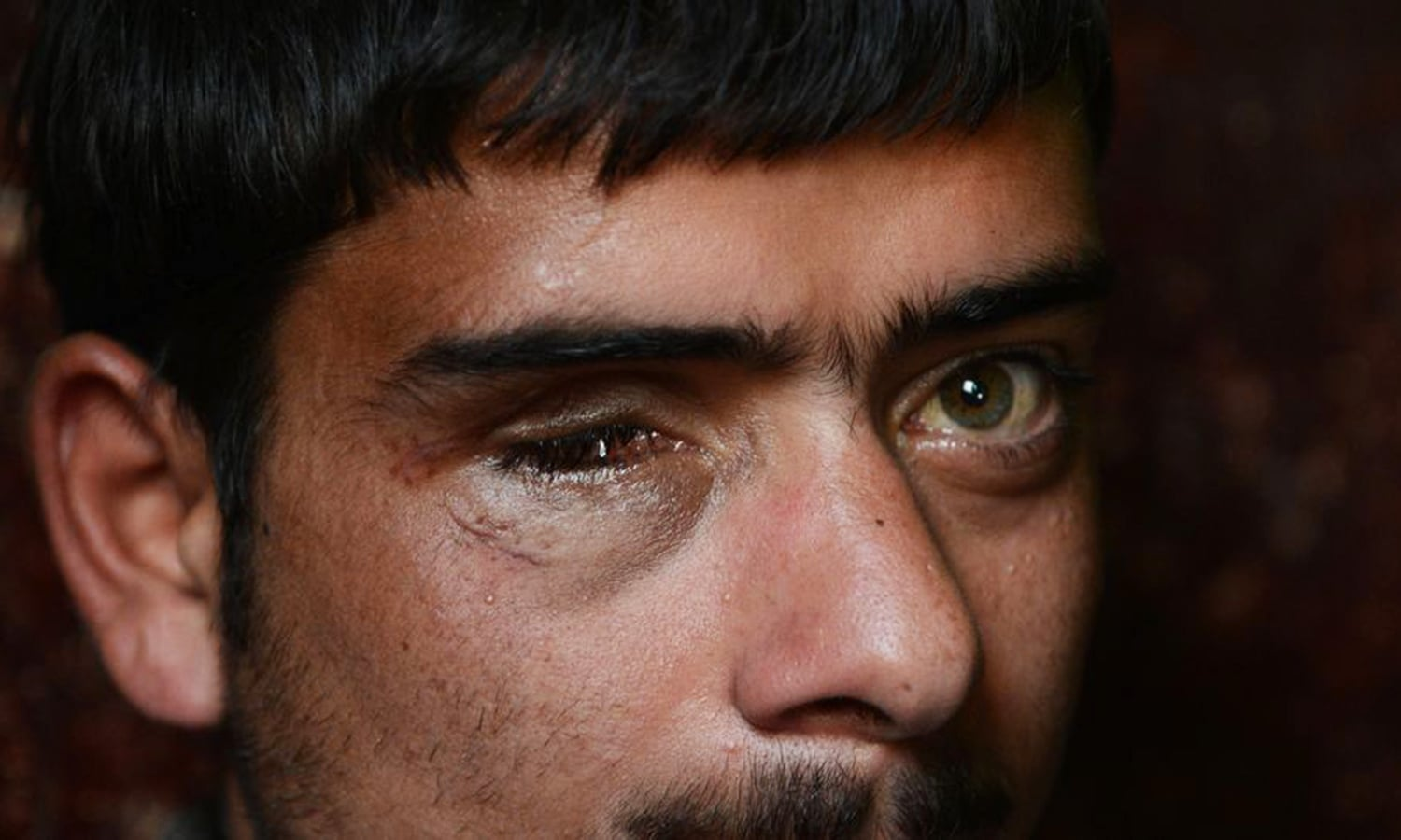 Will the pellet gun victims in Kashmir ever regain their eyesight?