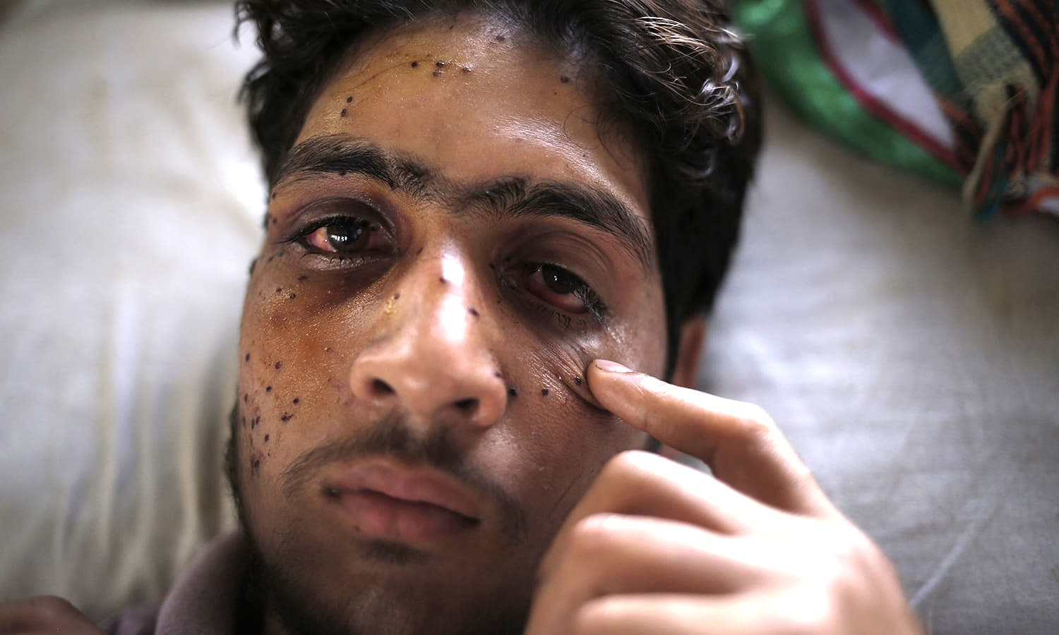 What pellet guns have done to protesters in Kashmir