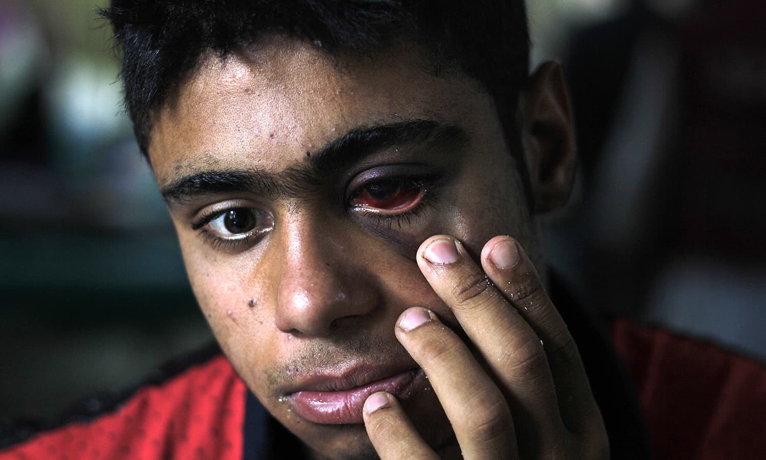 Injuries to the eyes have brought widespread condemnation against the use of pellet guns.