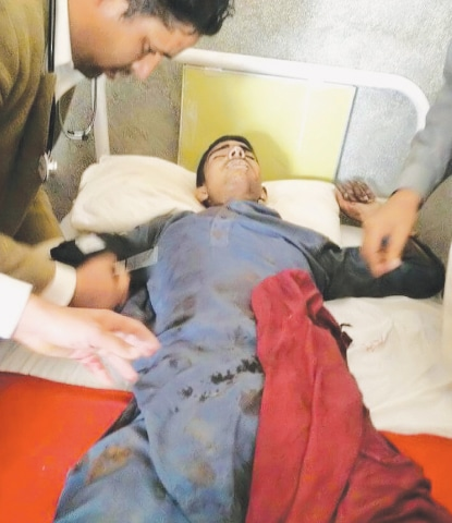 A boy is being treated in a hospital after he suffered wounds in unprovoked firing by Indian forces in the Bhimber sector.—Online