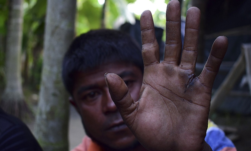 Rohingya refugee Mujibullah holds up his injured hand as he sits at a makeshift refugee camp in Teknaf, in southern Cox's Bazar district.. ─ AFP