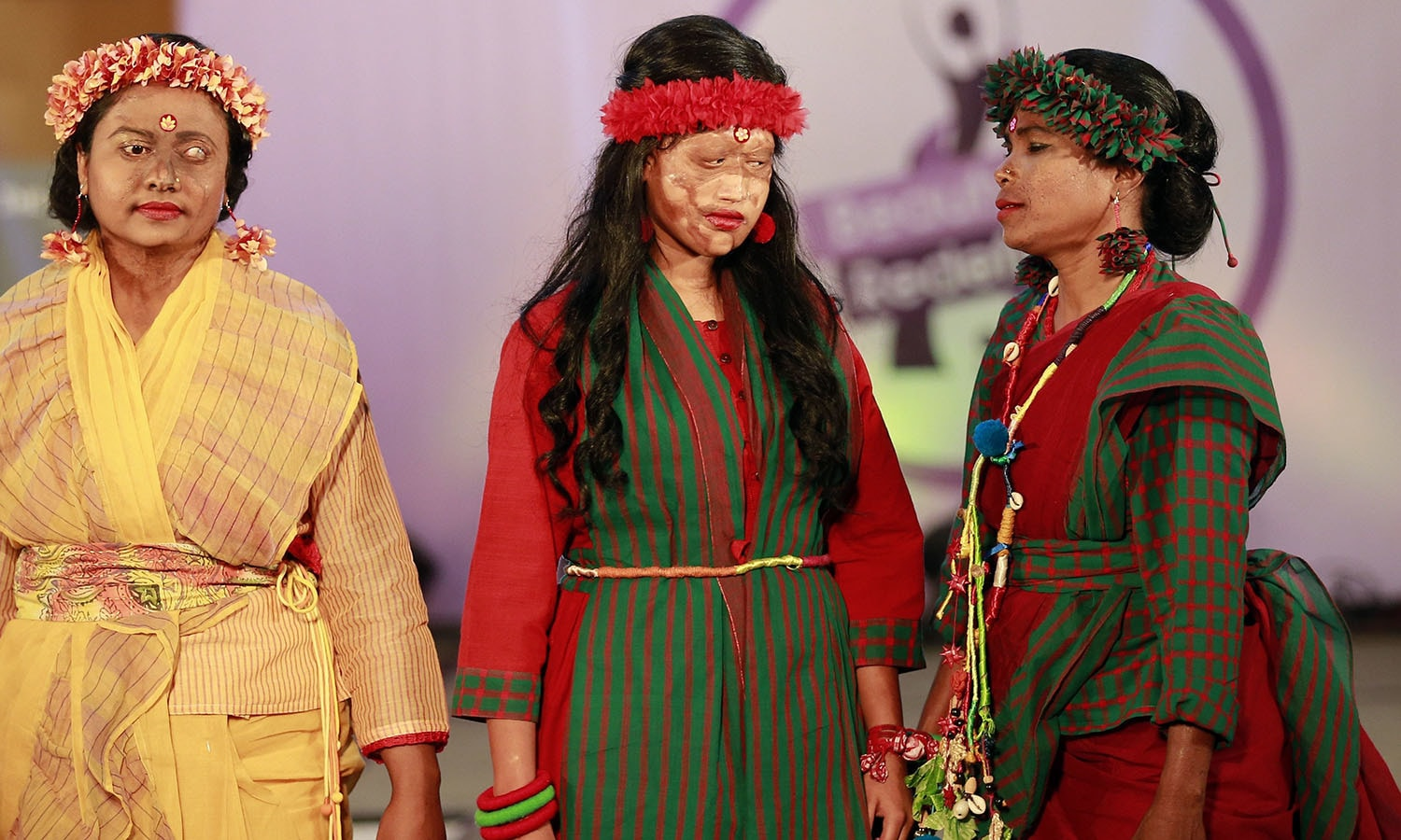 A Bangladeshi acid attack survivor walk down the catwalk during the event 'Beauty Redefined' in Dhaka, Bangladesh.─AP