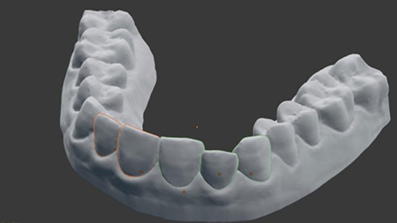 تھری ڈی پرنٹر سے دانتوں کی تیاری ممکن