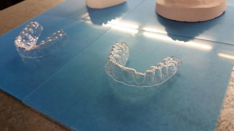 تھری ڈی پرنٹر پلاسٹک کے دانت تیار کرتا ہے—فوٹو: ایموس ڈیوڈلی