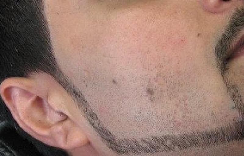 گوادر: ڈیزائن والی داڑھی بنانے پر پابندی