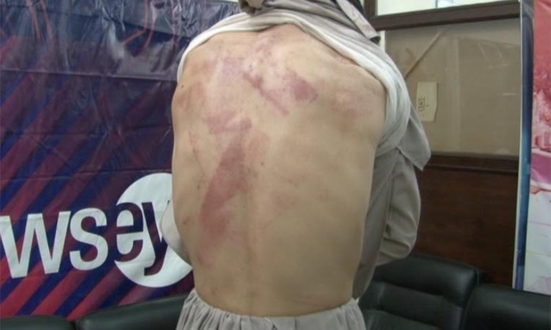 Gul Nazuq shows off the bruises on his back after allegedly being thrashed by police. ─ DawnNews