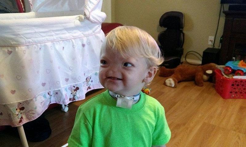 بغیر ناک کے پیدا ہونے والا بچہ 2 سال بعد انتقال کرگیا