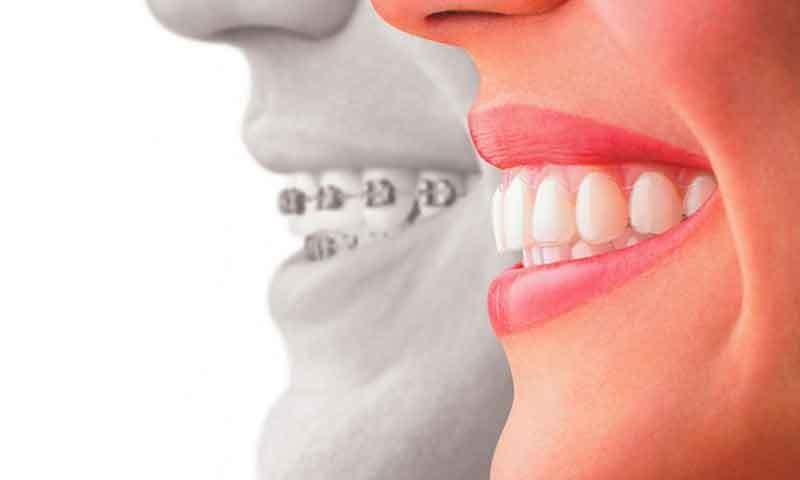 دانتوں میں چھپی بیماریاں کبھی کبھی بڑی بیماریوں کا روپ بھی لے لیتی ہیں، ماہرین—فوٹو: شٹر اسٹاک