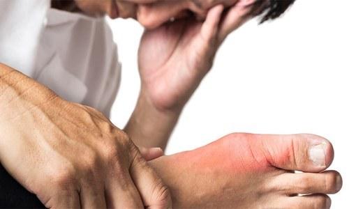 جوڑوں کے امراض کی 5 علامات