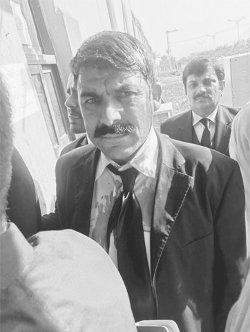 ISLAMABAD: An injured lawyer after the scuffle with police on the entrance of accountability court.—Online