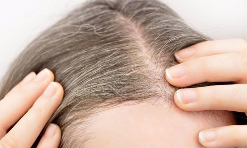 قبل از وقت بالوں کی سفیدی جان لیوا مرض کی علامت
