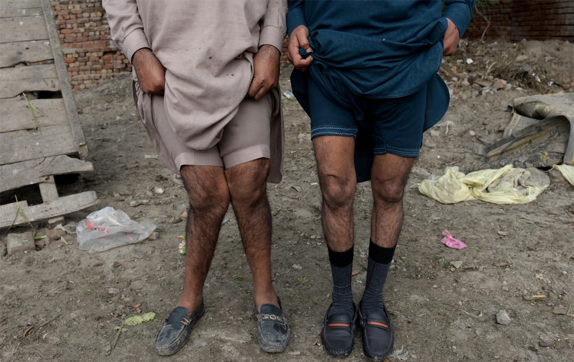 Muhammad Naveed and Basharat Ali of Kot Asadullah show their deformed legs