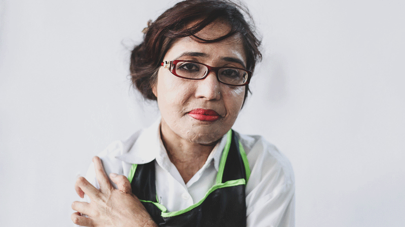 Let these acid attack survivors inspire you to turn your life around