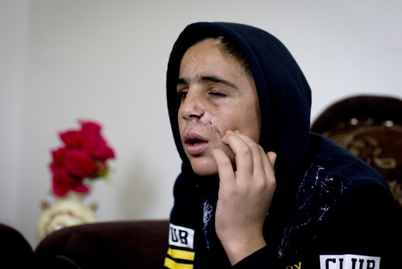 In this Jan 5 photo, Mohammed Tamimi, Ahed Tamimi's 15-year-old cousin, sits in his family home in Nabi Saleh, recovering from a serious head injury sustained after being shot with a rubber-coated metal bullet in clashes with Israeli troops on Dec 15.─AP