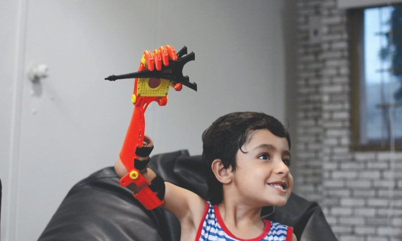 Mir Baiyaan has became more social after he received his robotic arm | Photo courtesy of Bioniks