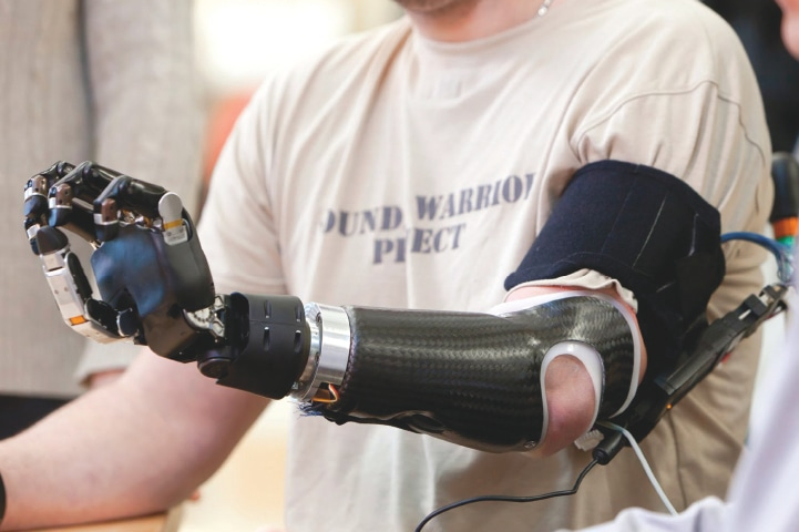 A robotic arm is lighter and more functional than a mechanical one