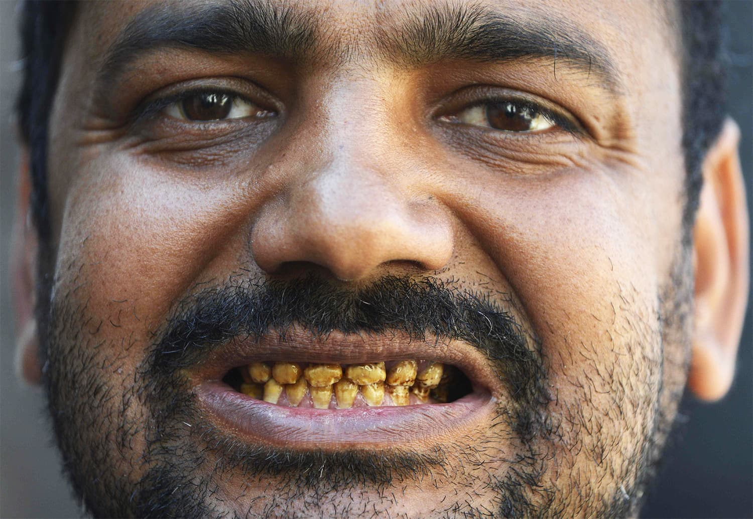 In this picture taken on February 25, 2018, Naveed shows his teeth rotting allegedly due to environmental factors and polluted groundwater in Kot Assadullah. ─ AFP