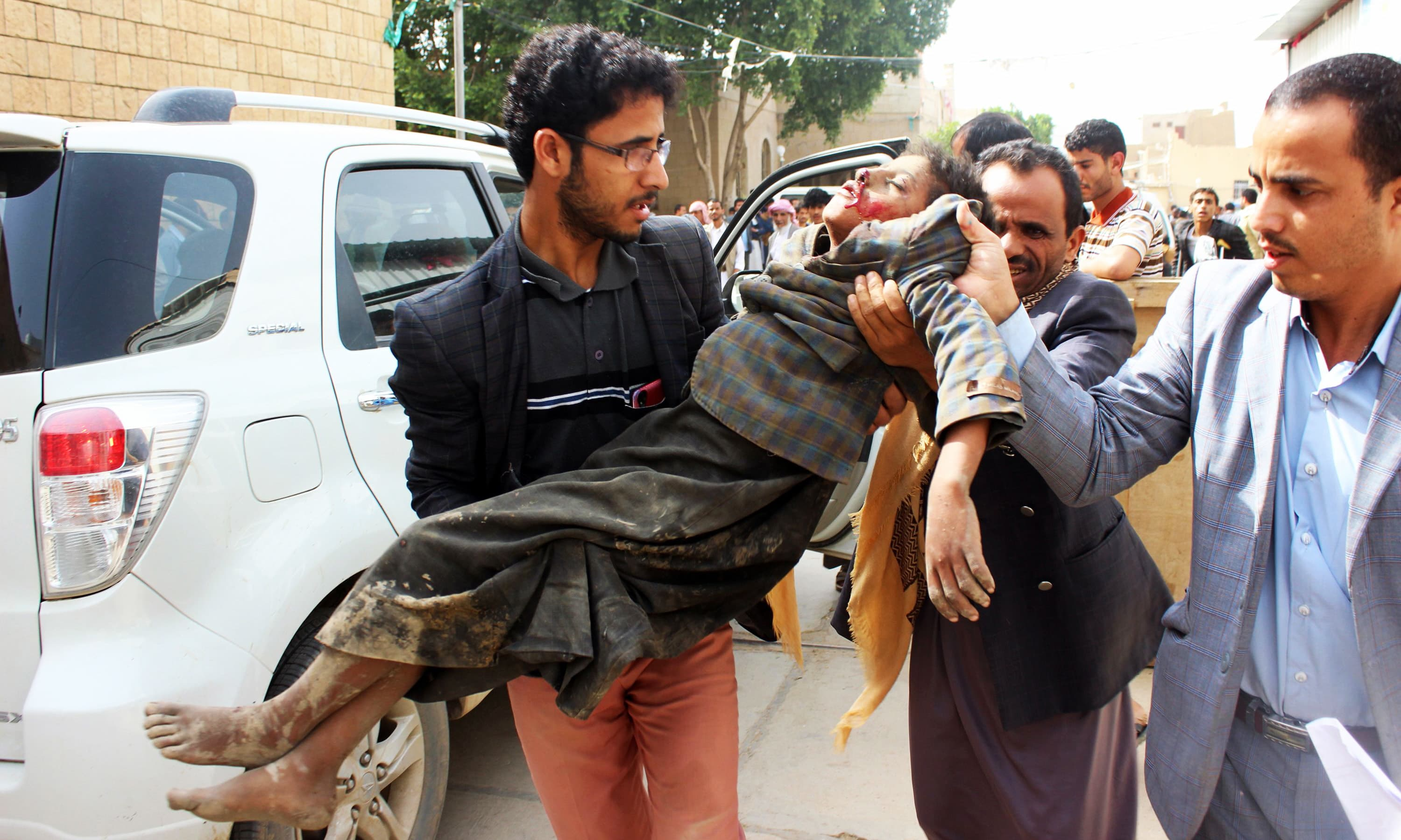 A Yemeni child is transported to a hospital after being being wounded in a Saudi-led coalition air strike. —AFP