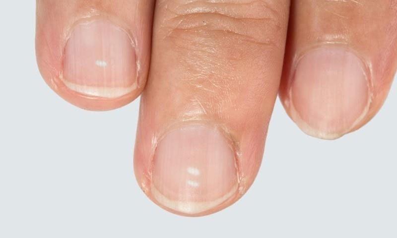 انگلیوں کے ناخنوں پر سفید نشان خطرناک ہوتے ہیں؟